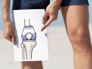 Протезирование суставов в Германии