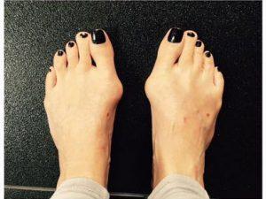 Hallux Valgus или «Косточки на ногах»