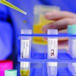 Лечение рака мочевого пузыря в Германии